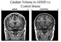 Acupuncture for the Treatment of ADHD